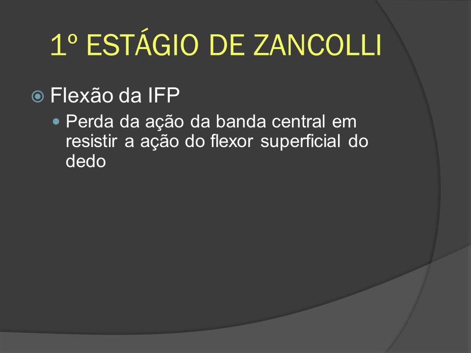 1º ESTÁGIO DE ZANCOLLI Flexão da IFP Perda da ação da banda central em resistir a ação do flexor superficial do dedo