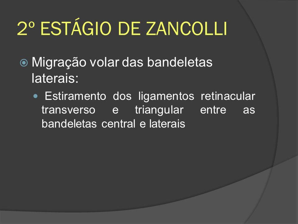 2º ESTÁGIO DE ZANCOLLI Migração volar das bandeletas laterais: Estiramento dos ligamentos retinacular transverso e triangular entre as bandeletas cent