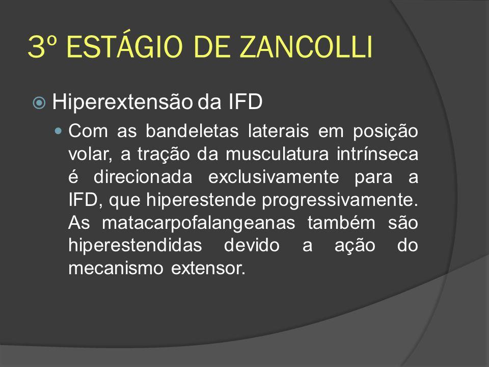 3º ESTÁGIO DE ZANCOLLI Hiperextensão da IFD Com as bandeletas laterais em posição volar, a tração da musculatura intrínseca é direcionada exclusivamen