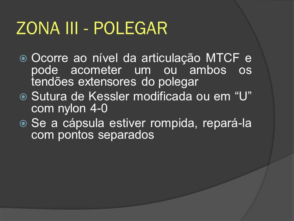 ZONA III - POLEGAR Ocorre ao nível da articulação MTCF e pode acometer um ou ambos os tendões extensores do polegar Sutura de Kessler modificada ou em