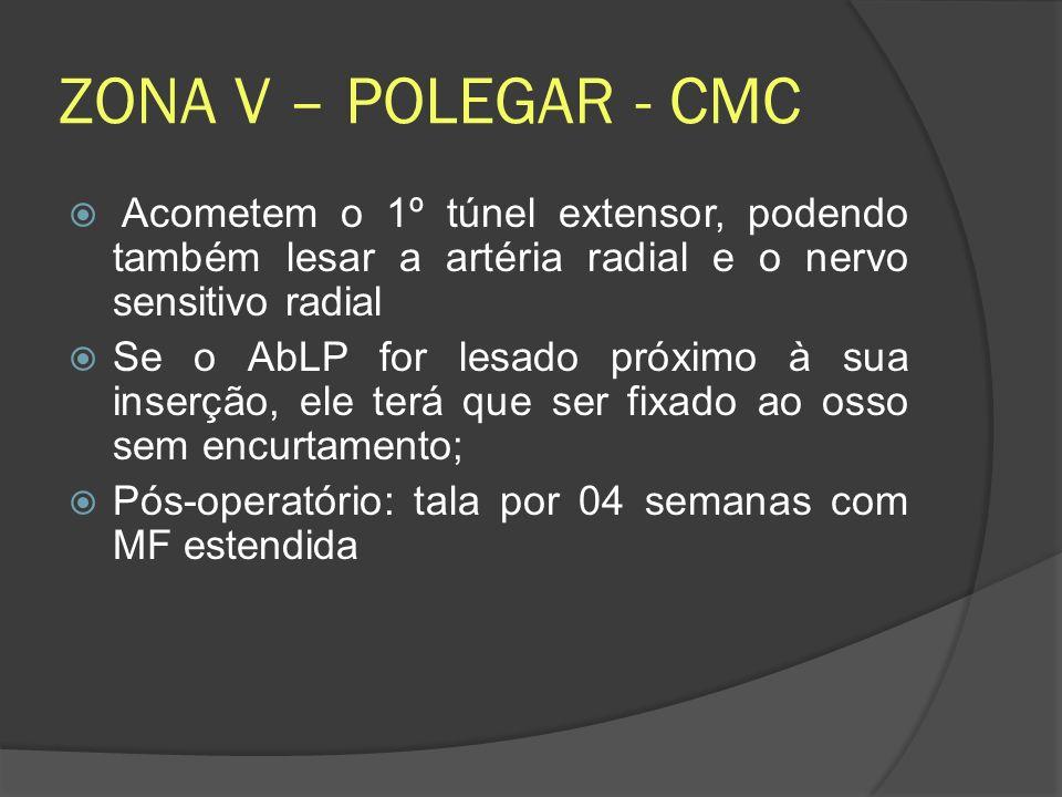 ZONA V – POLEGAR - CMC Acometem o 1º túnel extensor, podendo também lesar a artéria radial e o nervo sensitivo radial Se o AbLP for lesado próximo à s