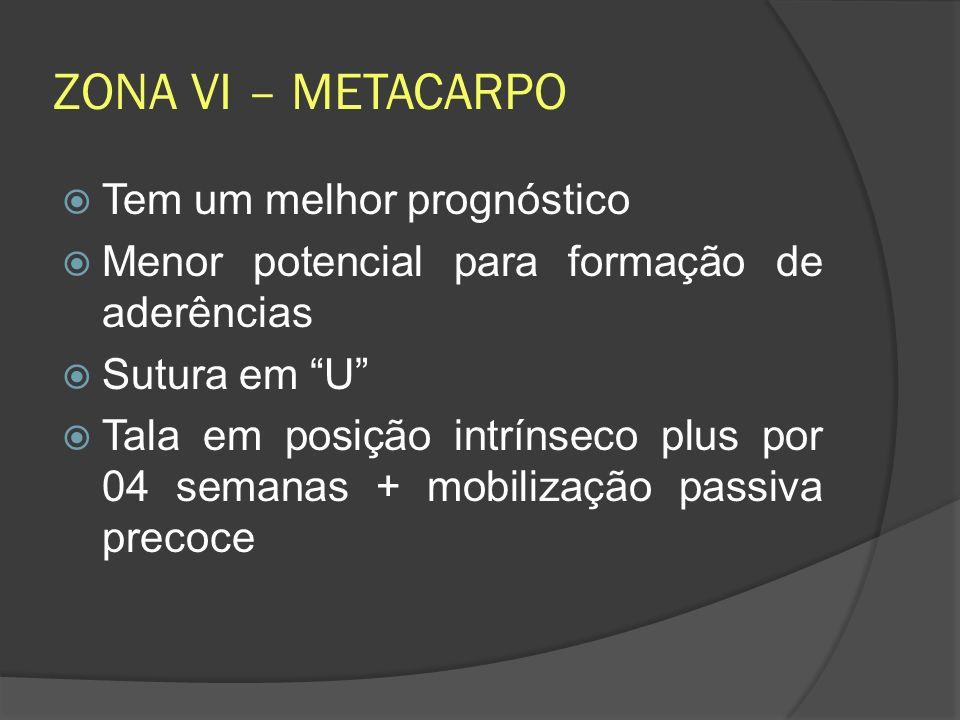 ZONA VI – METACARPO Tem um melhor prognóstico Menor potencial para formação de aderências Sutura em U Tala em posição intrínseco plus por 04 semanas +