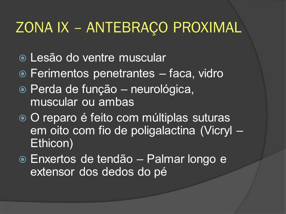 ZONA IX – ANTEBRAÇO PROXIMAL Lesão do ventre muscular Ferimentos penetrantes – faca, vidro Perda de função – neurológica, muscular ou ambas O reparo é