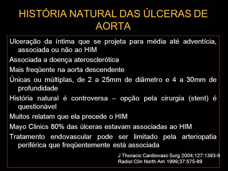 HISTÓRIA NATURAL DAS ÚLCERAS DE AORTA Ulceração da íntima que se projeta para média até adventícia, associada ou não ao HIM Associada a doença aterosc