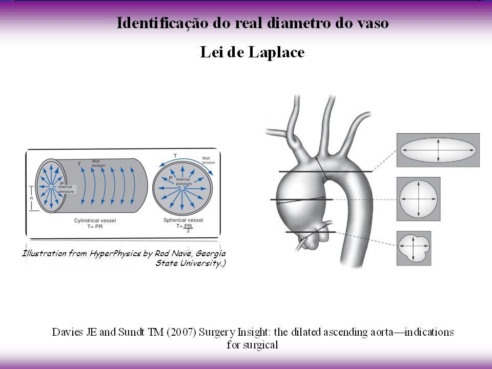 David T. E. et al.; J Thorac Cardiovasc Surg 1995;109:345-352 Remodelamento