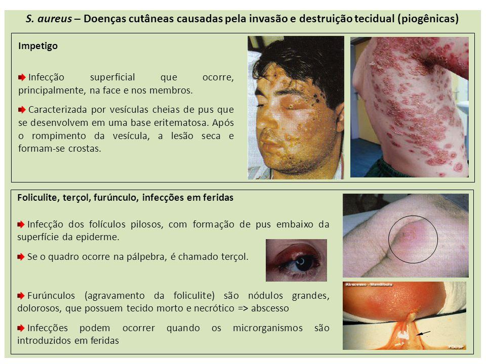 S. aureus – Doenças cutâneas causadas pela invasão e destruição tecidual (piogênicas) Impetigo Infecção superficial que ocorre, principalmente, na fac