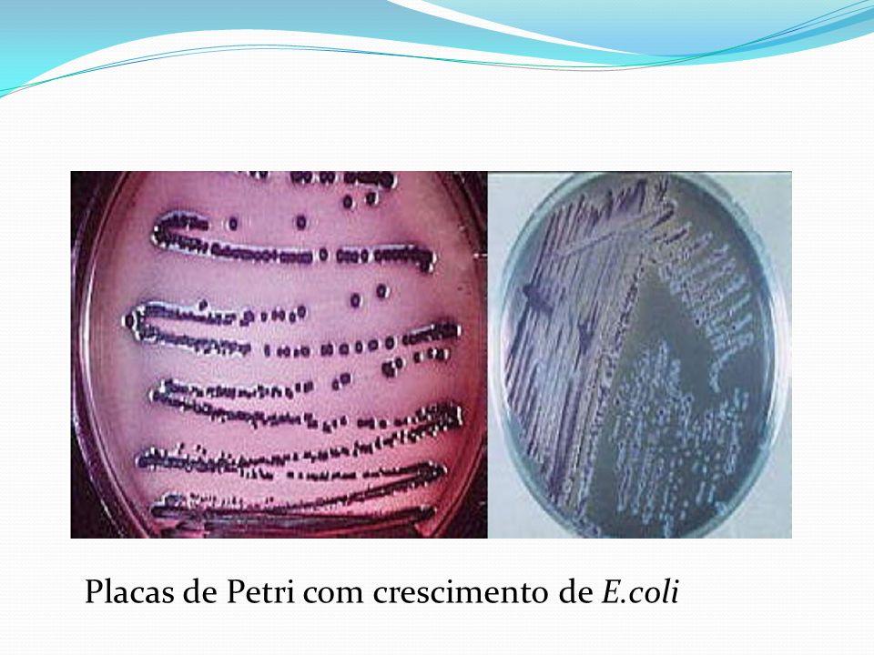 Placas de Petri com crescimento de E.coli