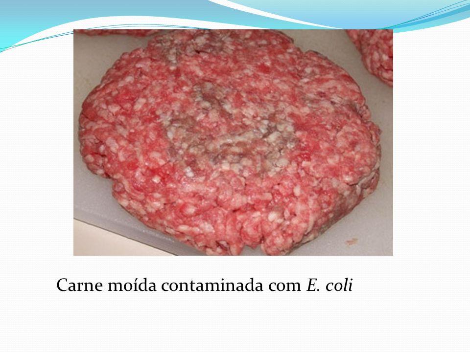 Carne moída contaminada com E. coli
