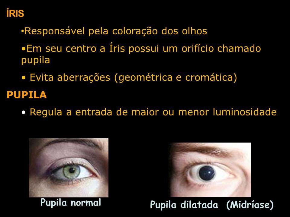 ÍRIS R esponsável pela coloração dos olhos Em seu centro a Íris possui um orifício chamado pupila Evita aberrações (geométrica e cromática) PUPILA Reg