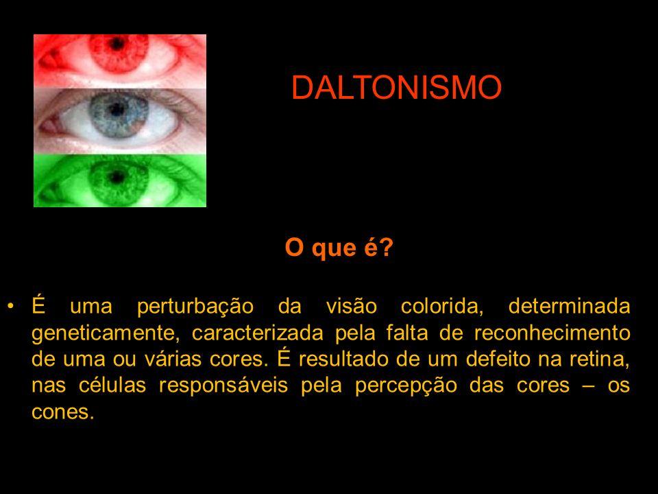 O que é? É uma perturbação da visão colorida, determinada geneticamente, caracterizada pela falta de reconhecimento de uma ou várias cores. É resultad