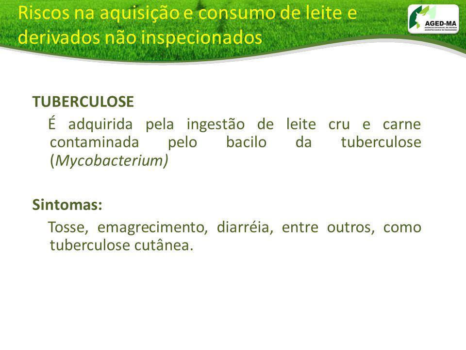 Riscos na aquisição e consumo de leite e derivados não inspecionados TUBERCULOSE É adquirida pela ingestão de leite cru e carne contaminada pelo bacil
