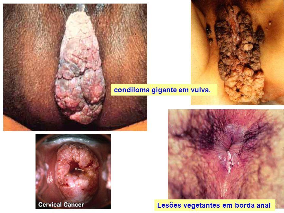 Lesões vegetantes em borda anal condiloma gigante em vulva.