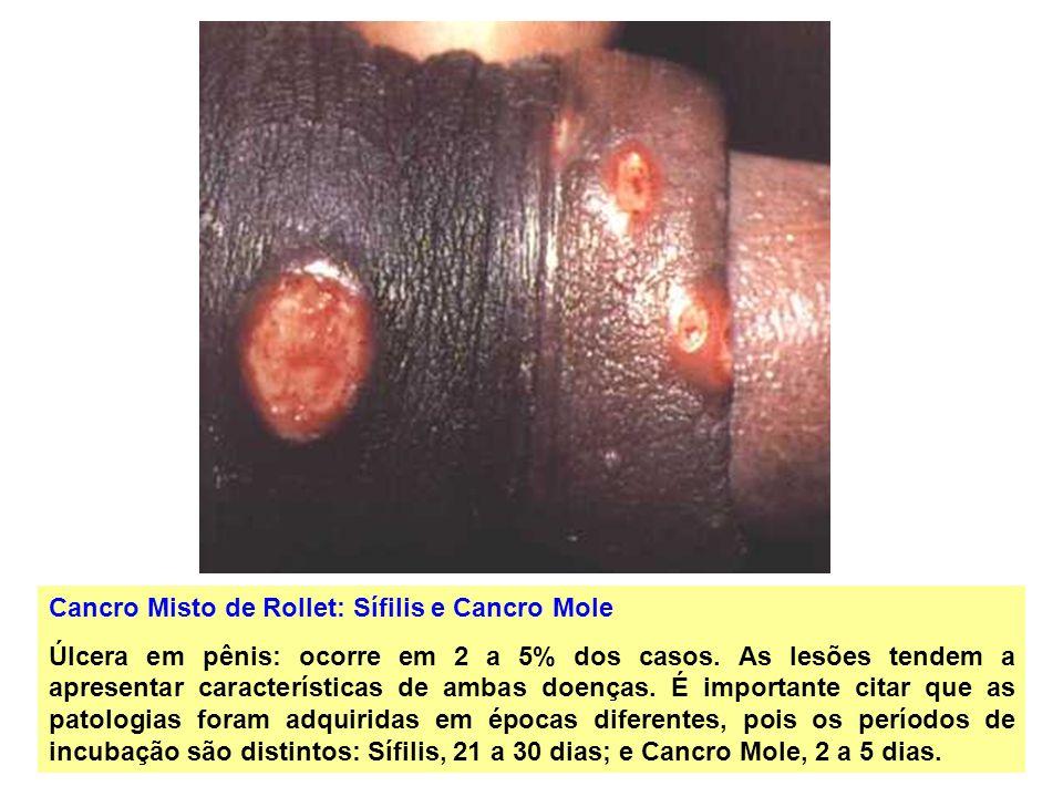 Cancro Misto de Rollet: Sífilis e Cancro Mole Úlcera em pênis: ocorre em 2 a 5% dos casos. As lesões tendem a apresentar características de ambas doen