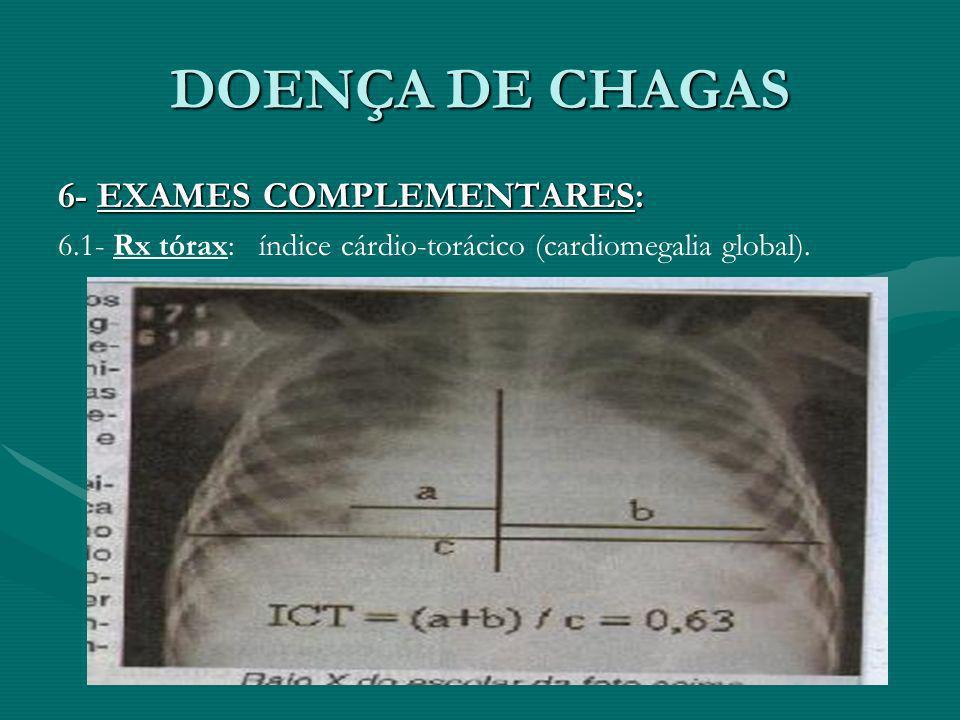 DOENÇA DE CHAGAS 6- EXAMES COMPLEMENTARES: 6.1- Rx tórax: índice cárdio-torácico (cardiomegalia global).