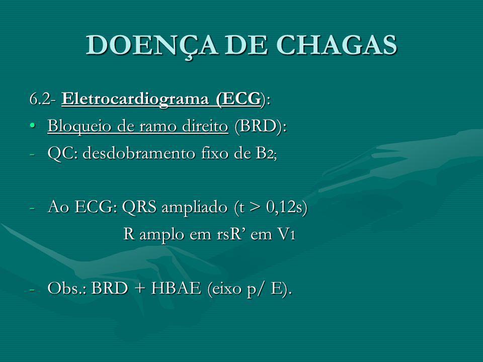 DOENÇA DE CHAGAS 6.2- Eletrocardiograma (ECG): Bloqueio de ramo direito (BRD):Bloqueio de ramo direito (BRD): -QC: desdobramento fixo de B 2; -Ao ECG: