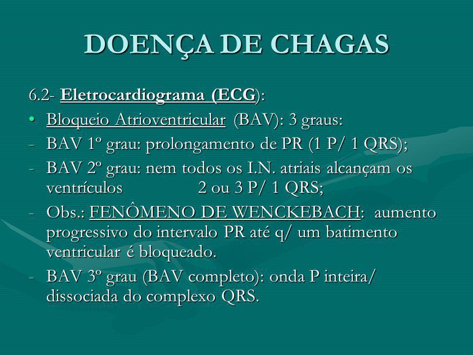 DOENÇA DE CHAGAS 6.2- Eletrocardiograma (ECG): Bloqueio Atrioventricular (BAV): 3 graus:Bloqueio Atrioventricular (BAV): 3 graus: -BAV 1º grau: prolon