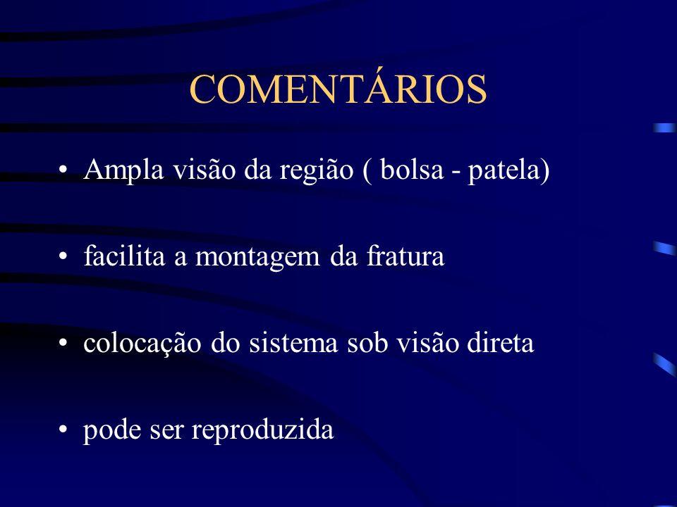 COMENTÁRIOS Ampla visão da região ( bolsa - patela) facilita a montagem da fratura colocação do sistema sob visão direta pode ser reproduzida