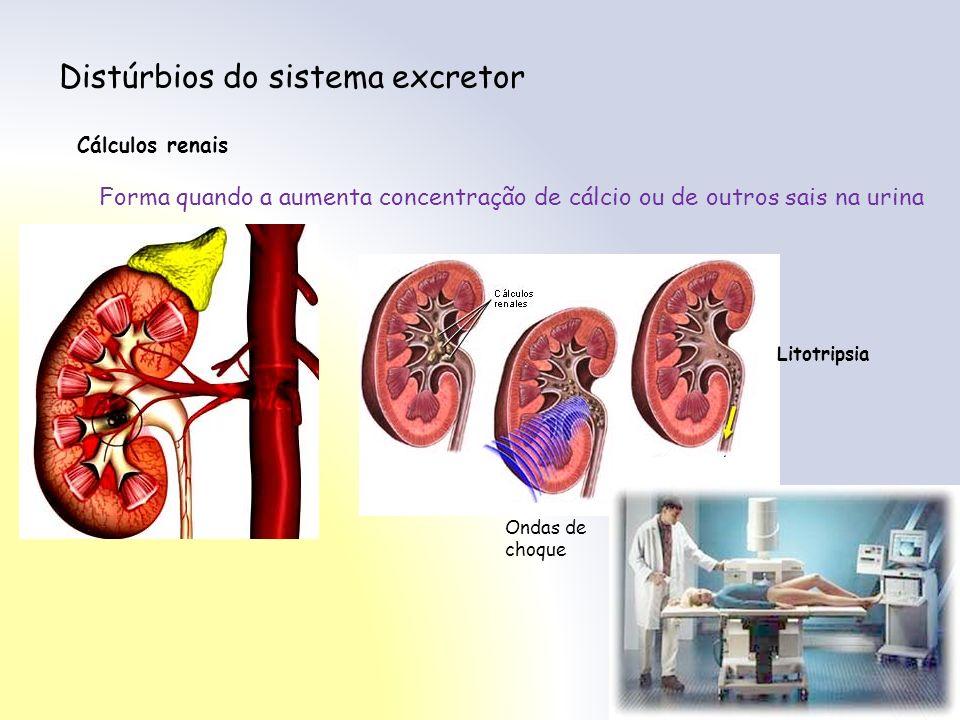 Distúrbios do sistema excretor Cálculos renais Forma quando a aumenta concentração de cálcio ou de outros sais na urina Ondas de choque Litotripsia