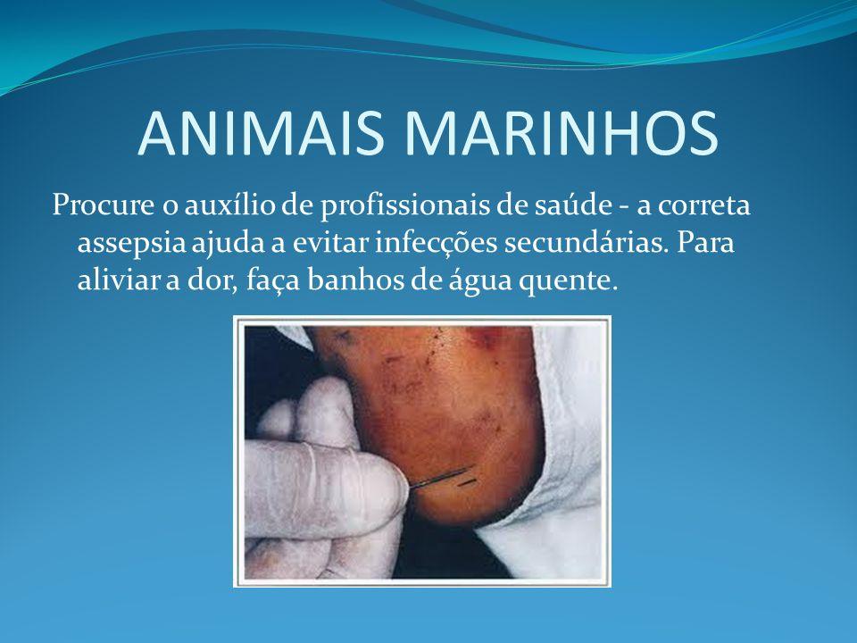 ANIMAIS MARINHOS Procure o auxílio de profissionais de saúde - a correta assepsia ajuda a evitar infecções secundárias. Para aliviar a dor, faça banho