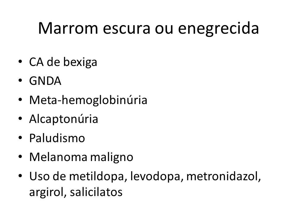 Marrom escura ou enegrecida CA de bexiga GNDA Meta-hemoglobinúria Alcaptonúria Paludismo Melanoma maligno Uso de metildopa, levodopa, metronidazol, ar
