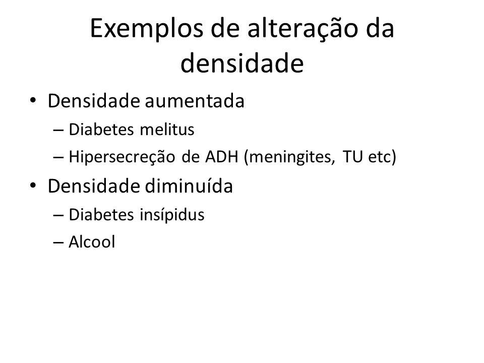 Exemplos de alteração da densidade Densidade aumentada – Diabetes melitus – Hipersecreção de ADH (meningites, TU etc) Densidade diminuída – Diabetes i