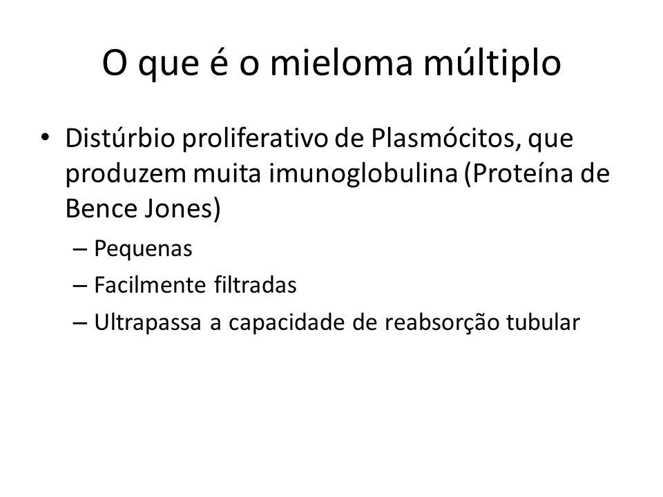 O que é o mieloma múltiplo Distúrbio proliferativo de Plasmócitos, que produzem muita imunoglobulina (Proteína de Bence Jones) – Pequenas – Facilmente