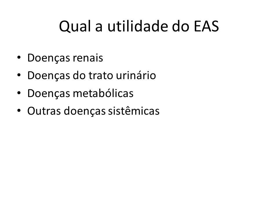 Em que consiste o EAS.
