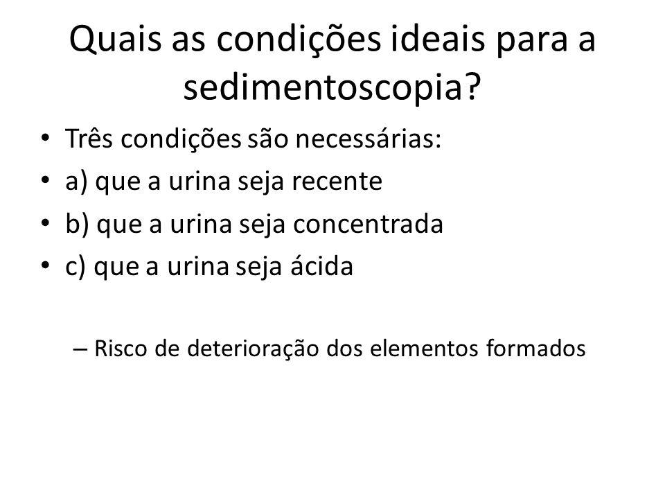 Quais as condições ideais para a sedimentoscopia? Três condições são necessárias: a) que a urina seja recente b) que a urina seja concentrada c) que a