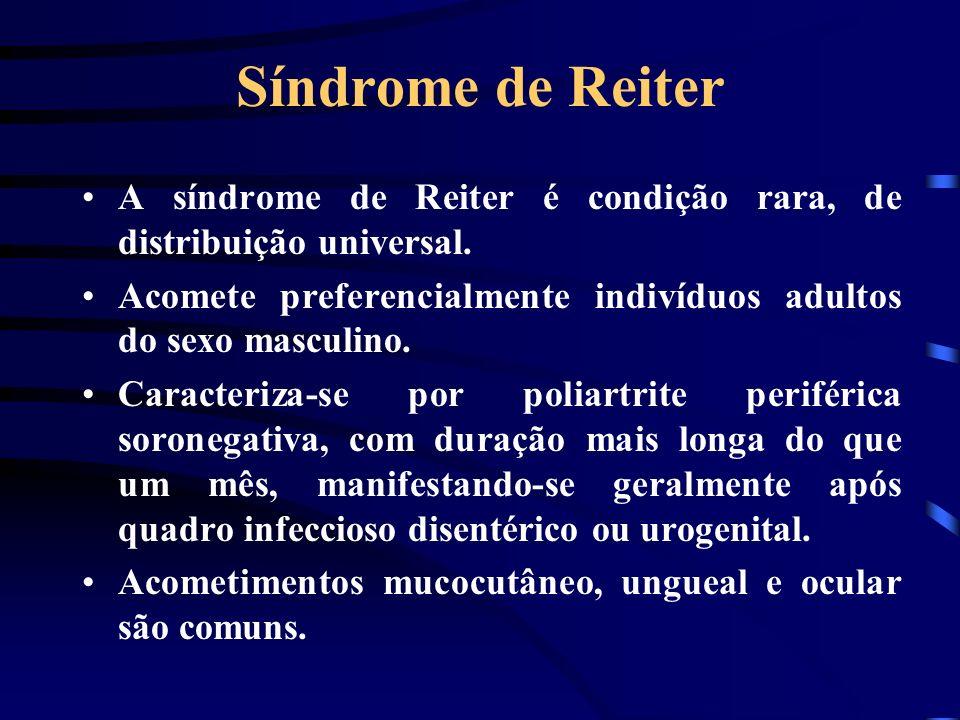 Síndrome de Reiter A síndrome de Reiter é condição rara, de distribuição universal. Acomete preferencialmente indivíduos adultos do sexo masculino. Ca