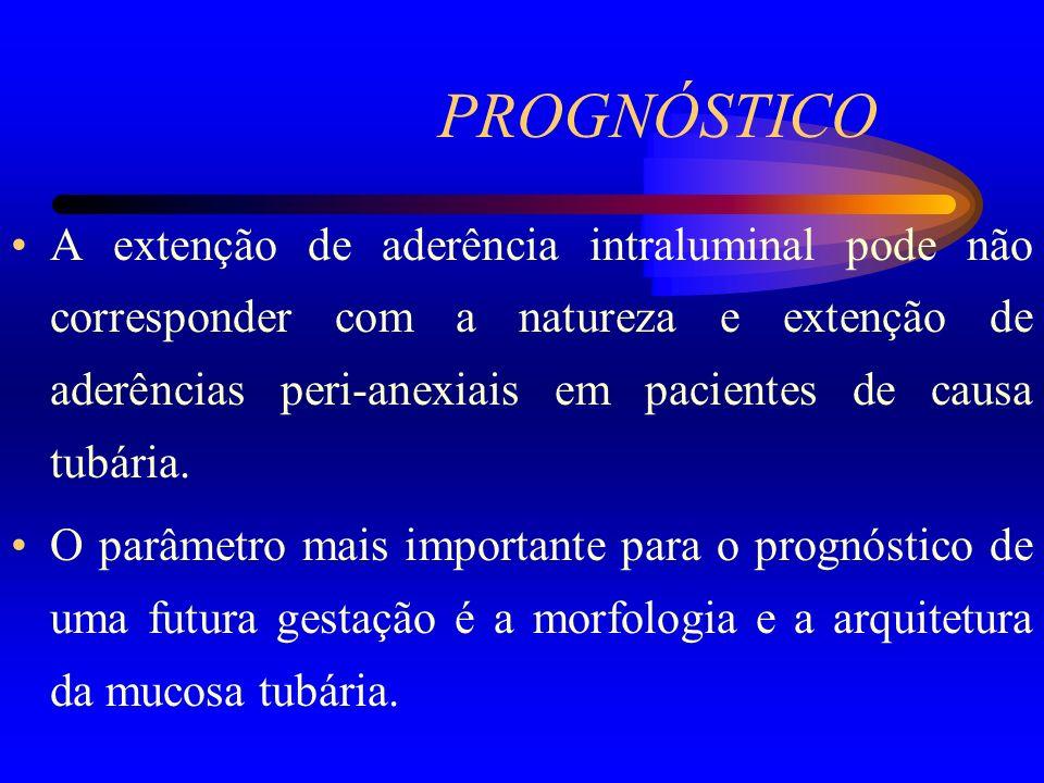 PROGNÓSTICO A extenção de aderência intraluminal pode não corresponder com a natureza e extenção de aderências peri-anexiais em pacientes de causa tub