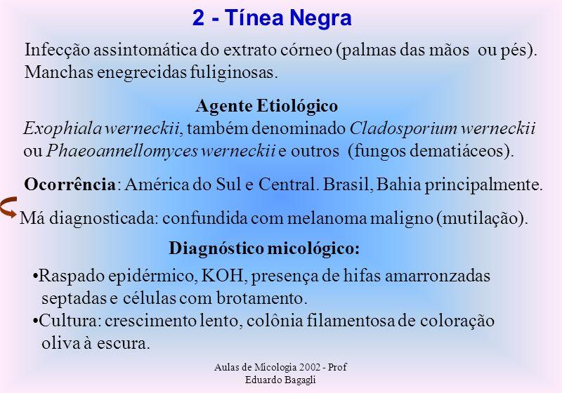 Aulas de Micologia 2002 - Prof Eduardo Bagagli 2 - Tínea Negra Infecção assintomática do extrato córneo (palmas das mãos ou pés). Manchas enegrecidas