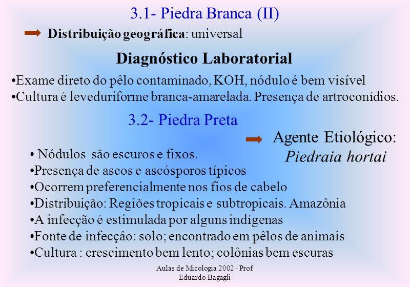 Aulas de Micologia 2002 - Prof Eduardo Bagagli 3.1- Piedra Branca (II) Diagnóstico Laboratorial Exame direto do pêlo contaminado, KOH, nódulo é bem vi