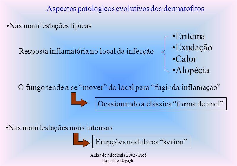 Aulas de Micologia 2002 - Prof Eduardo Bagagli Aspectos patológicos evolutivos dos dermatófitos Nas manifestações típicas Resposta inflamatória no loc