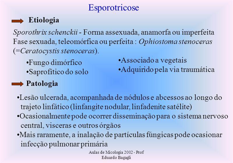 Aulas de Micologia 2002 - Prof Eduardo Bagagli Esporotricose Etiologia Sporothrix schenckii - Forma assexuada, anamorfa ou imperfeita Fase sexuada, te