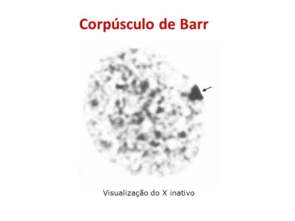 Corpúsculo de Barr Visualização do X inativo