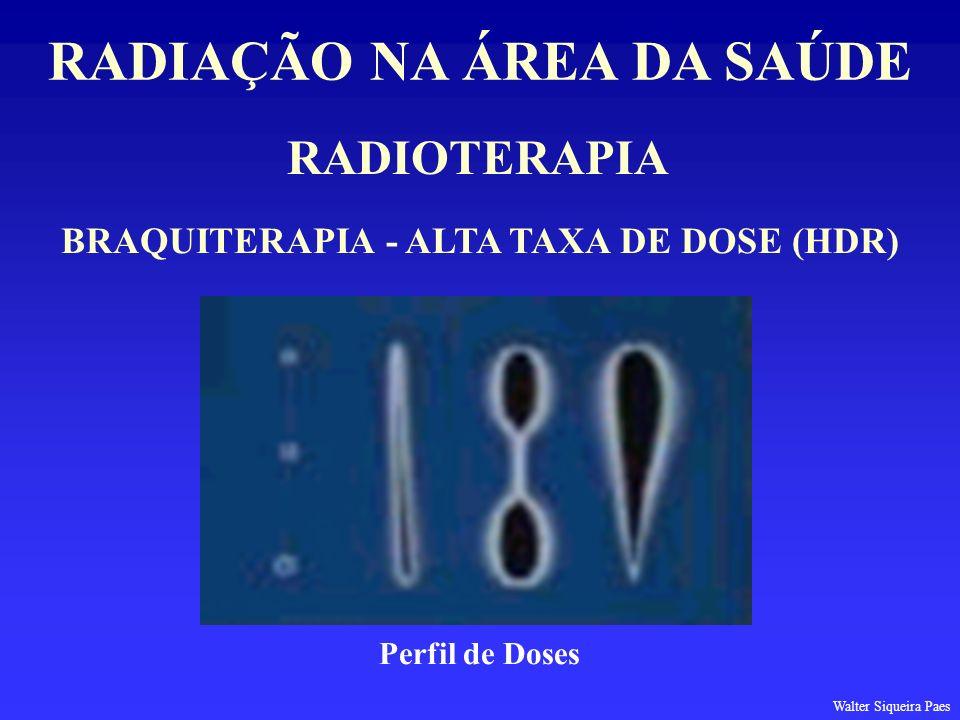 RADIOTERAPIA RADIAÇÃO NA ÁREA DA SAÚDE BRAQUITERAPIA - ALTA TAXA DE DOSE (HDR) Perfil de Doses Walter Siqueira Paes