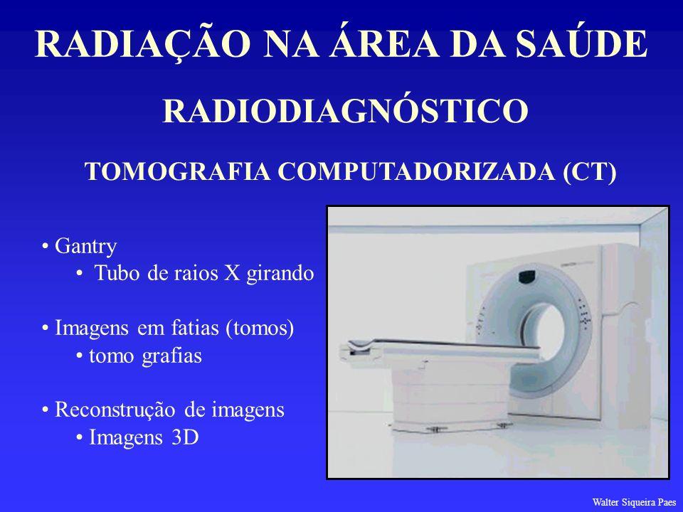 RADIODIAGNÓSTICO RADIAÇÃO NA ÁREA DA SAÚDE TOMOGRAFIA COMPUTADORIZADA (CT) Gantry Tubo de raios X girando Imagens em fatias (tomos) tomo grafias Recon