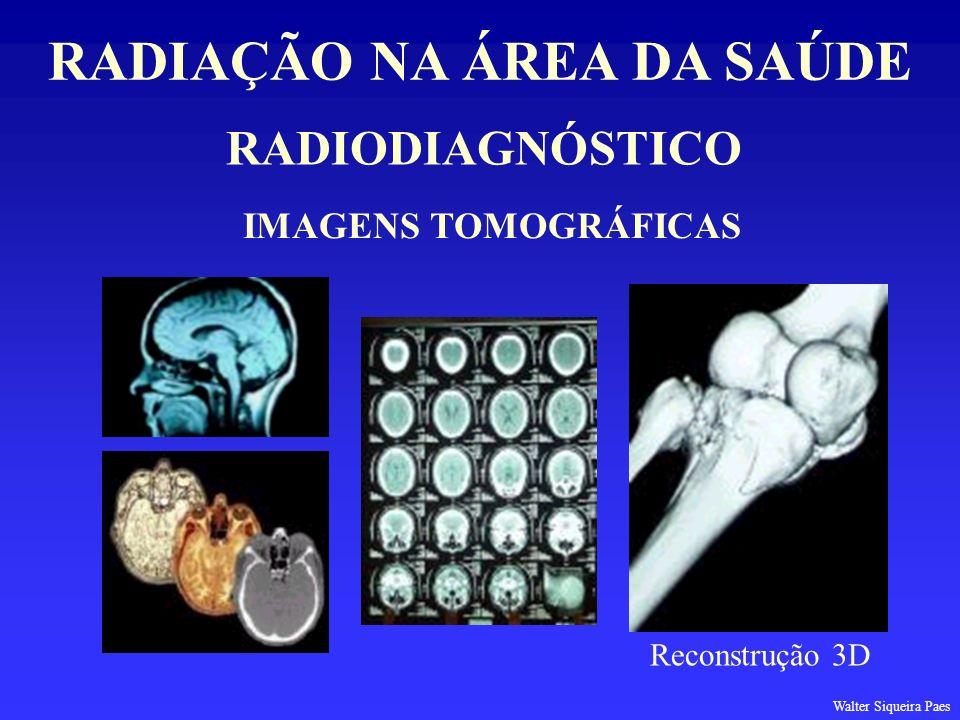 RADIODIAGNÓSTICO RADIAÇÃO NA ÁREA DA SAÚDE IMAGENS TOMOGRÁFICAS Reconstrução 3D Walter Siqueira Paes