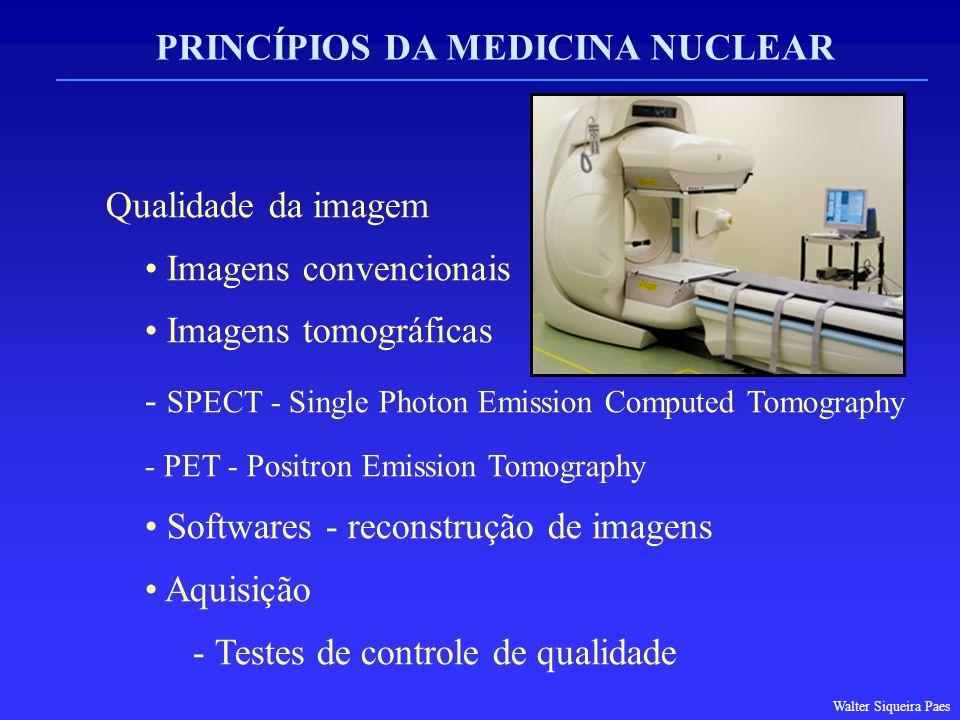 PRINCÍPIOS DA MEDICINA NUCLEAR Qualidade da imagem Imagens convencionais Imagens tomográficas  SPECT - Single Photon Emission Computed Tomography  P