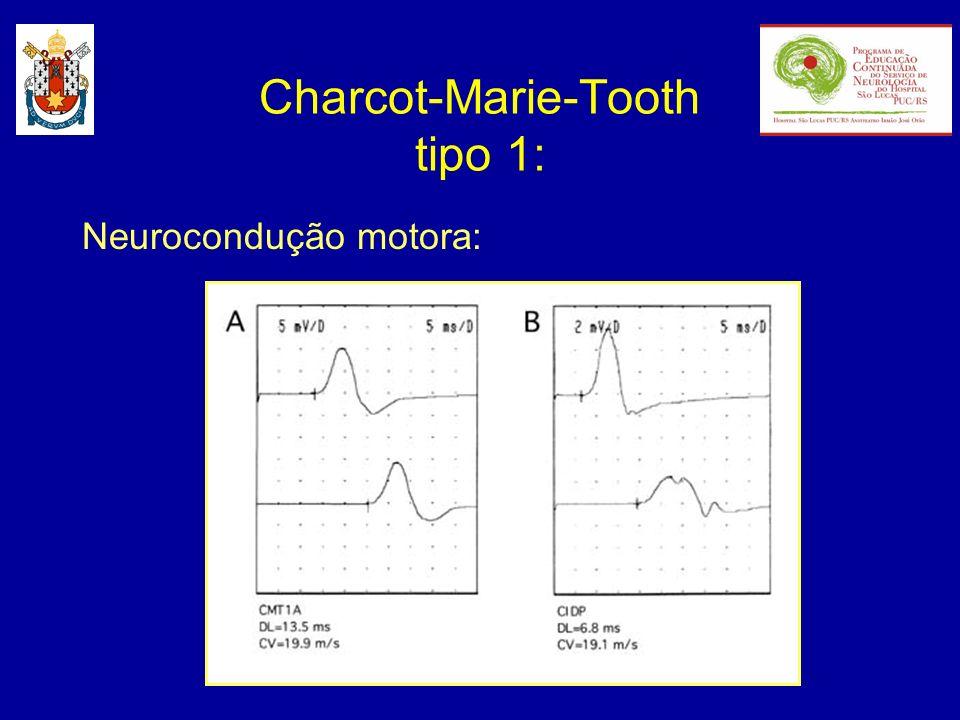 Neurocondução motora: Charcot-Marie-Tooth tipo 1: