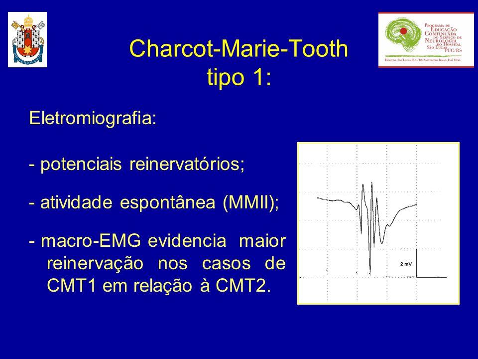 Eletromiografia: - potenciais reinervatórios; - atividade espontânea (MMII); - macro-EMG evidencia maior reinervação nos casos de CMT1 em relação à CM