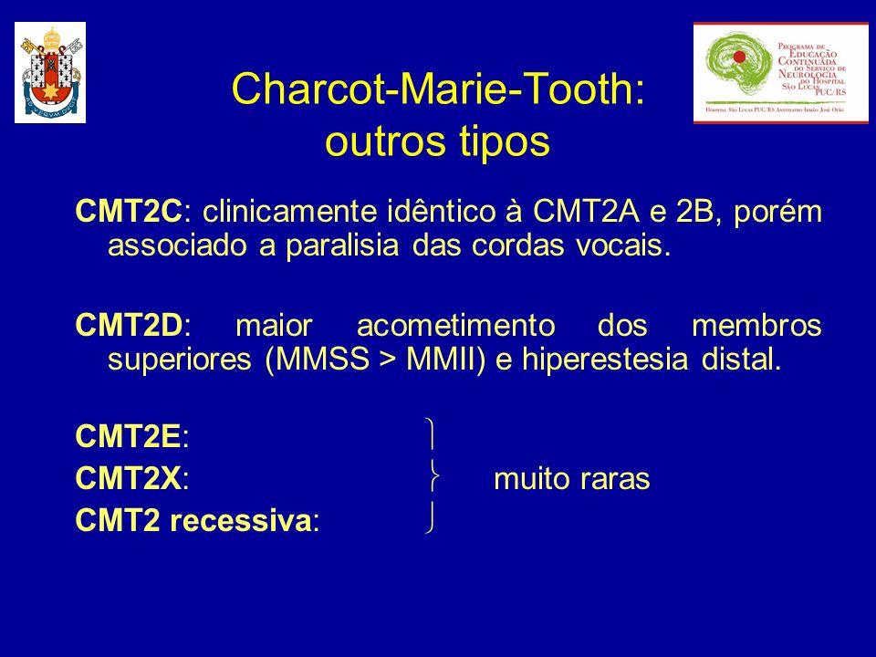 CMT2C: clinicamente idêntico à CMT2A e 2B, porém associado a paralisia das cordas vocais. CMT2D: maior acometimento dos membros superiores (MMSS > MMI