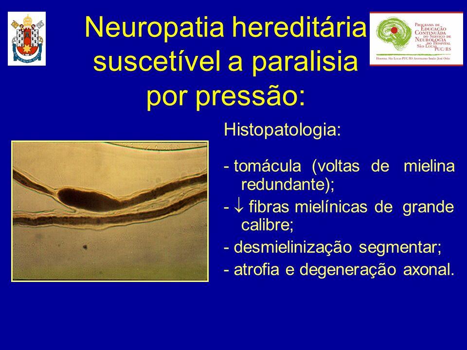 Histopatologia: - tomácula (voltas de mielina redundante); - fibras mielínicas de grande calibre; - desmielinização segmentar; - atrofia e degeneração