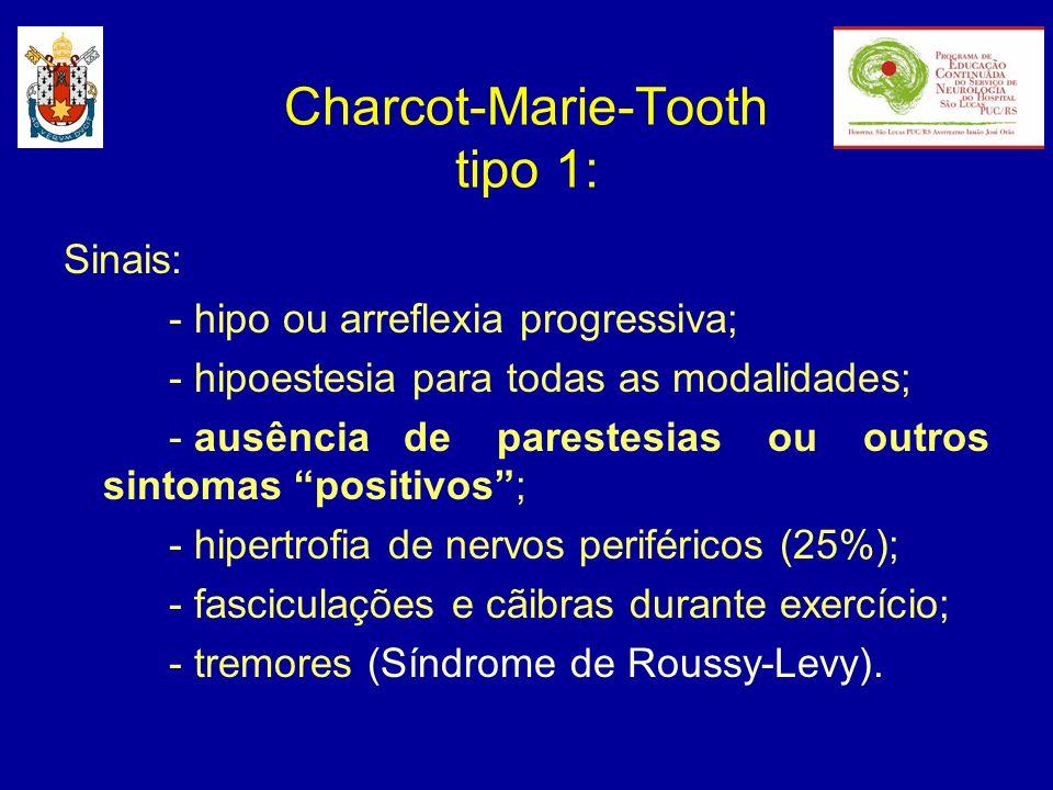 Sinais: - hipo ou arreflexia progressiva; - hipoestesia para todas as modalidades; - ausência de parestesias ou outros sintomas positivos; - hipertrof