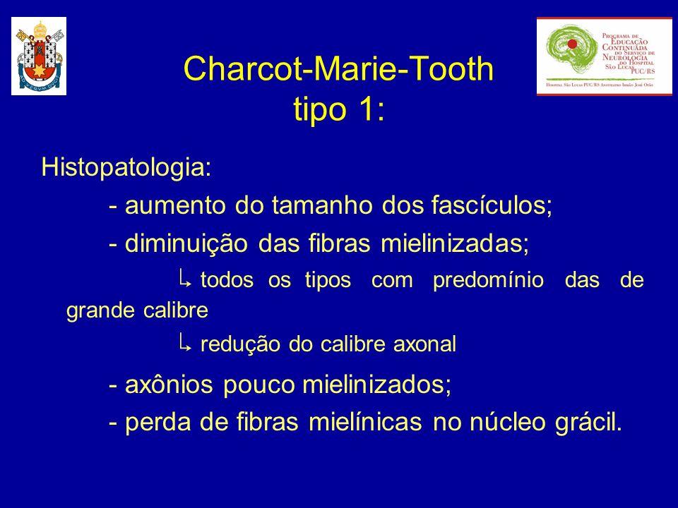 Histopatologia: - Bulbo de cebola: resultam de episódios múltiplos de desmielinização e remielinização; diminuição dos espaços internodais; - fibras amielínicas normais.