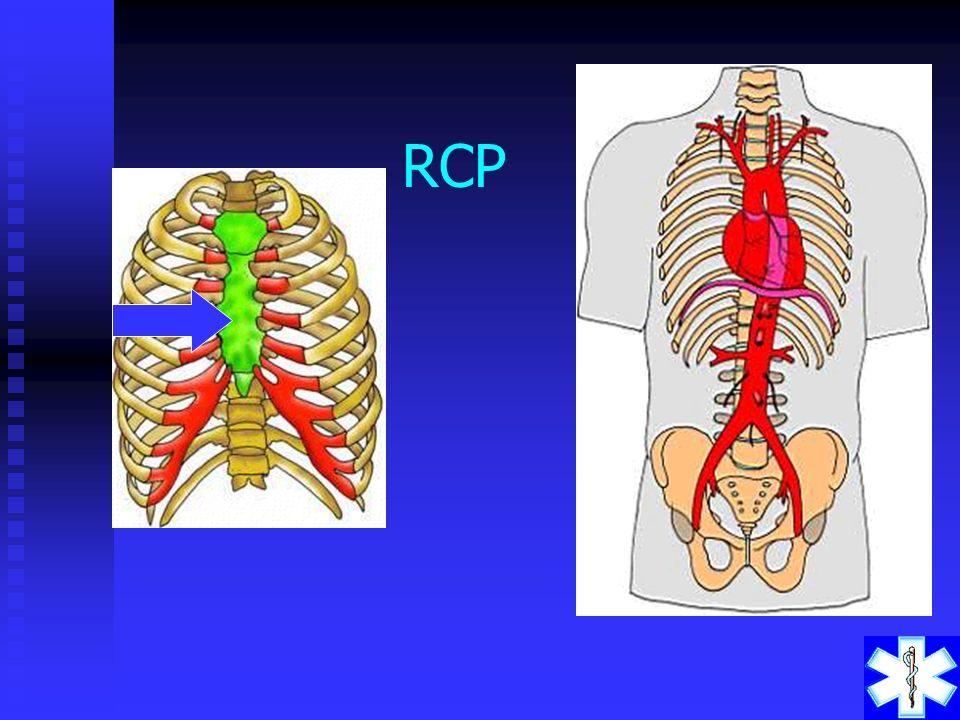 REANIMAÇÃO CARDIO- RESPIRATÓRIA Reanimação Cárdio-Respiratória são as manobras realizadas para restabelecer a ventilação pulmonar e a circulação sangü