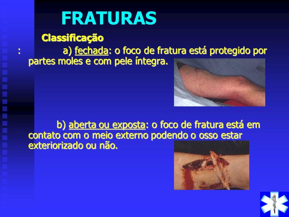 FRATURAS Fratura é uma lesão óssea de origem traumática, que pode ser produzida por trauma direto ou indireto, por alta energia ou baixa energia. Frat
