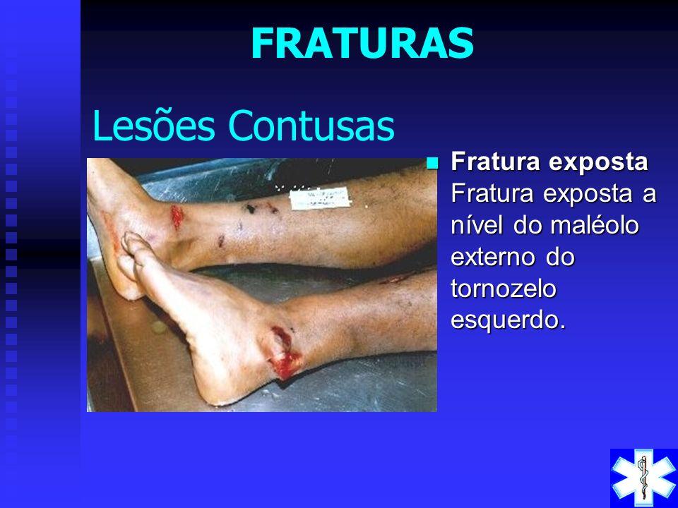 Classificação Classificação : a) fechada: o foco de fratura está protegido por partes moles e com pele íntegra. b) aberta ou exposta: o foco de fratur