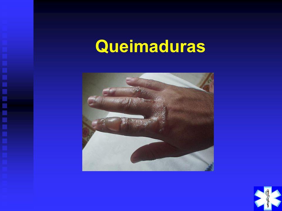 PROCEDIMENTOS a) Não movimentar vítima antes de imobilizar. b) Fraturas expostas, controlar o sangramento e proteger o ferimento. c) Fraturas de ossos