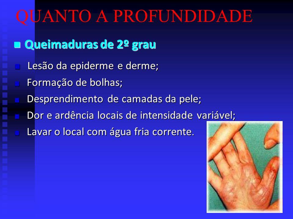 QUANTO A PROFUNDIDADE Queimaduras de 1º grau Queimaduras de 1º grau Lesão superficial da epiderme; Lesão superficial da epiderme; Vermelhidão; Vermelh
